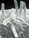 Agrobacterium tumefaciens attached to a plant cell. Courtesy Martha Hawes.